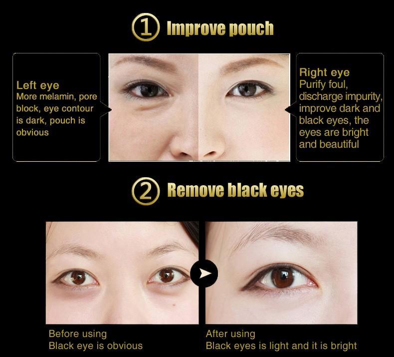 Mặt Nạ Đắp Mắt Chiết Xuất Dịch Nhầy Ốc Sên 3W Clinic cung cấp độ ẩm, giảm các nếp nhăn và bọng mắt, làn da mắt sáng khỏe, mịn màng